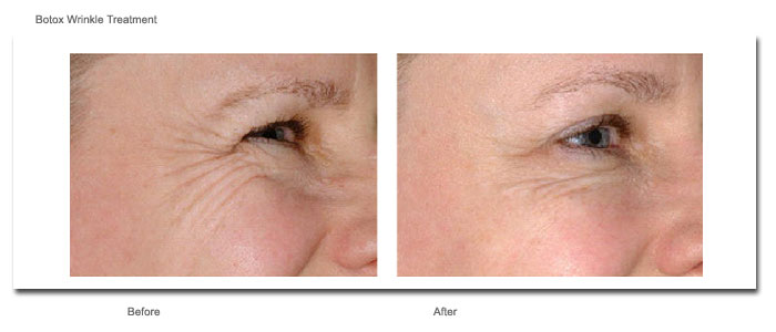 Botox Wrinkle Treatment