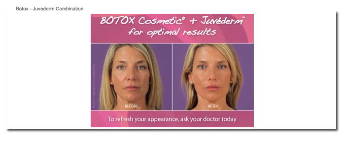 Botox - Juvederm Combination