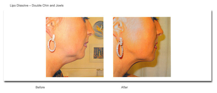 Lipo Dissolve - Double Chin and Jowls