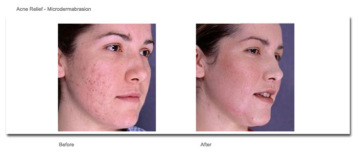 Acne Relief - Microdermabrasion