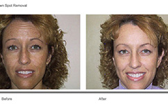 Sun Damage Laser Facelift